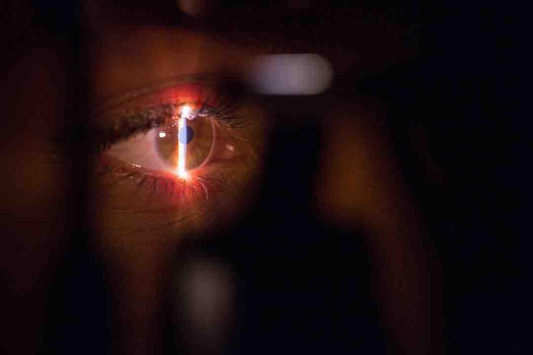 Comment devenir ophtalmologue