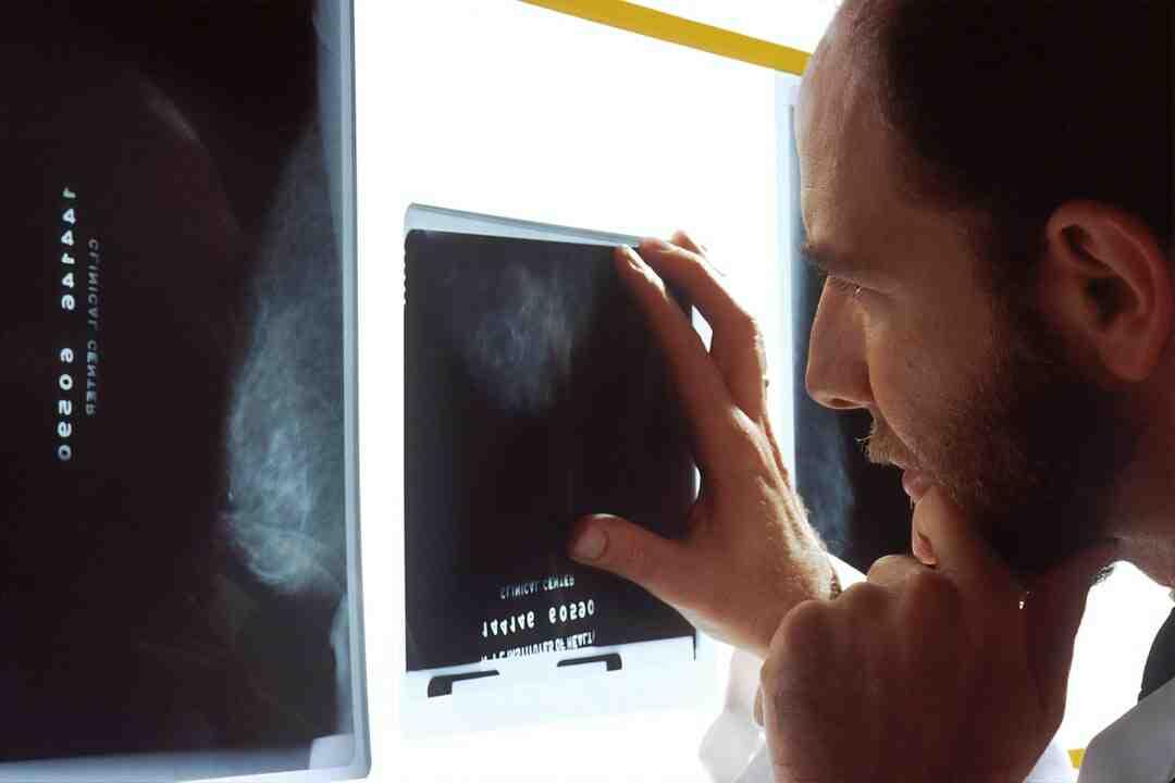 Comment éviter le cancer de la prostate