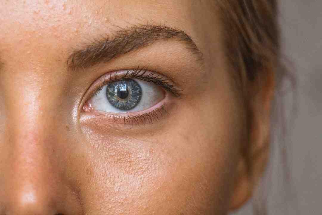 Problèmes de peau et ménopause