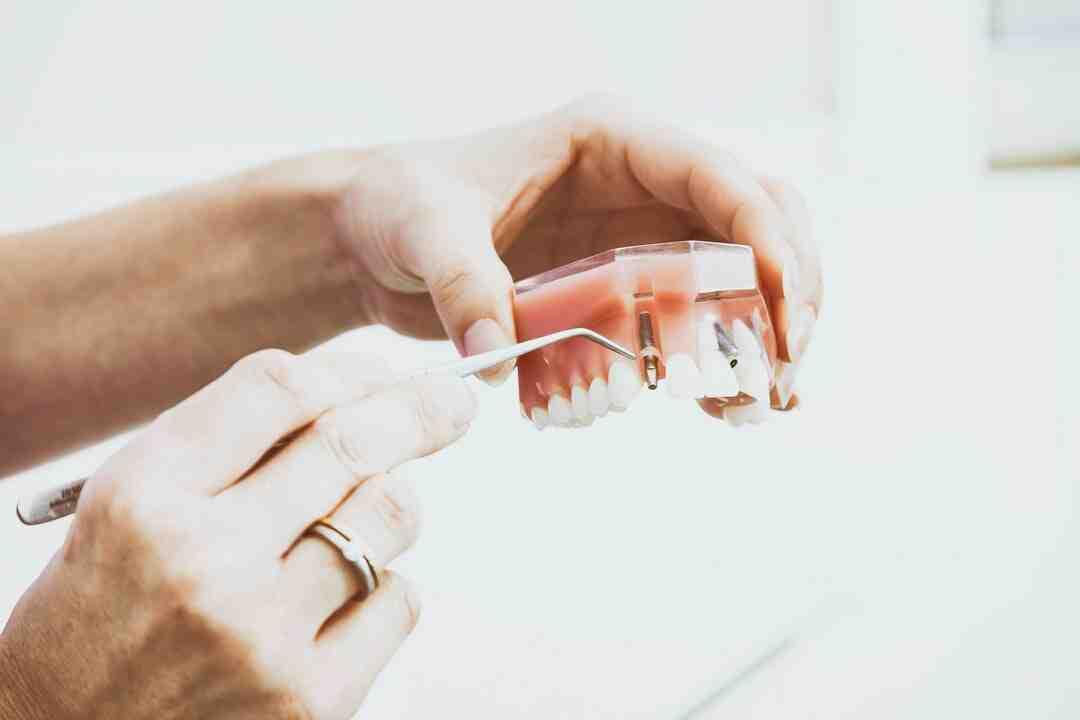 Occlusion dentaire : Symptômes, Causes, Traitement